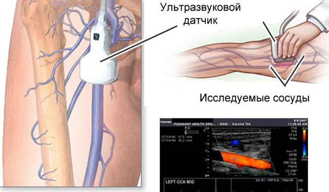 УЗИ артерий и вен нижних конечностей