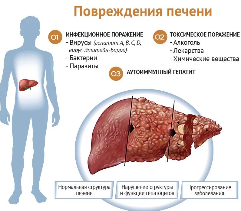 Лечение печени | Гастроэнтеролог от 1800р прием в день обращения!