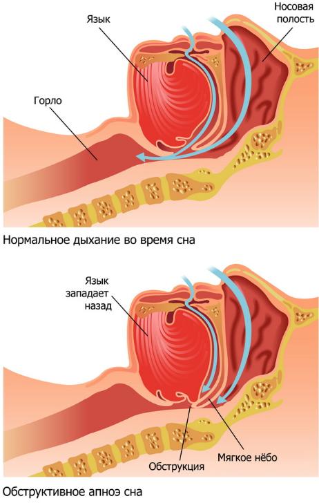 Обструктивное апноэ